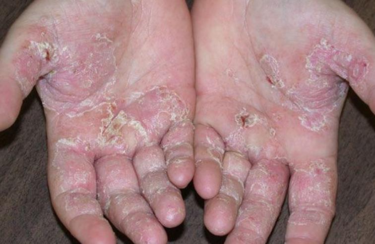 Cách phòng ngừa bệnh viêm da cơ địa thế nào?