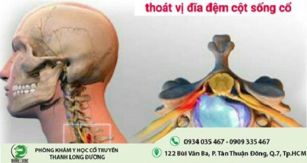 thoat-vi-dia-dem-cot-song-co